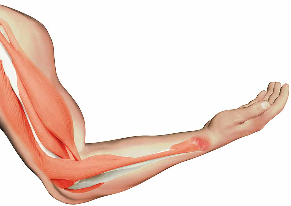 arm muscles « graphic design, photorealistic cgi, information, Muscles