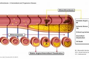 Atherothrombosis